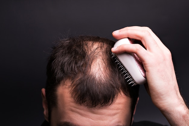 Ein mann kämmt sich die haare. kopf mit kahlheit. das problem des haarwuchses am kopf.
