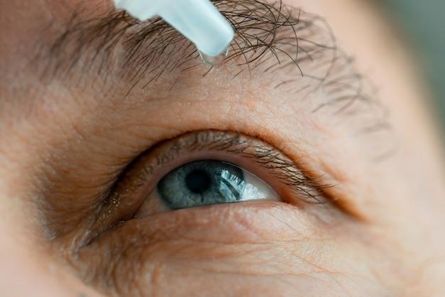 Ein mann setzt augentropfen in die augen, bevor er kontaktlinsen aufsetzt.