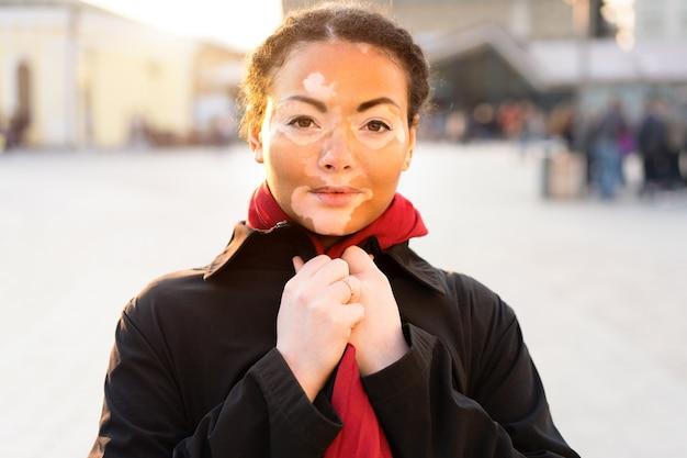 Ein schönes junges mädchen der afrikanischen ethnie mit dem vitiligo, das auf der warmen frühlingsstadtstraße steht, kleidete schwarzen mantel