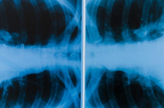 Eine draufsicht der röntgenaufnahme der lunge