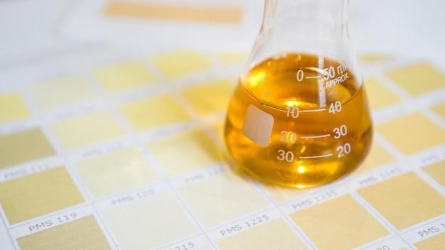 Eine flasche mit urin. konzept für medizinische analysen. bestimmung der diagnose durch die farbe des urins. diagramm mit farben.