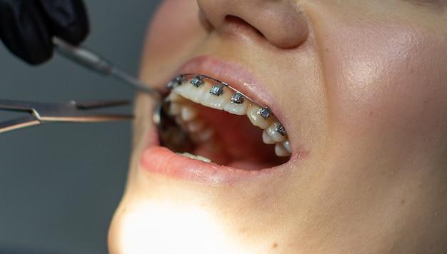 Eine frau mit zahnspange besucht einen kieferorthopäden in der klinik in einem zahnarztstuhl