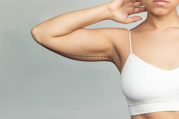 Eine junge frau mit überschüssigem fett am oberarm mit markierungen für fettabsaugung oder plastische chirurgie