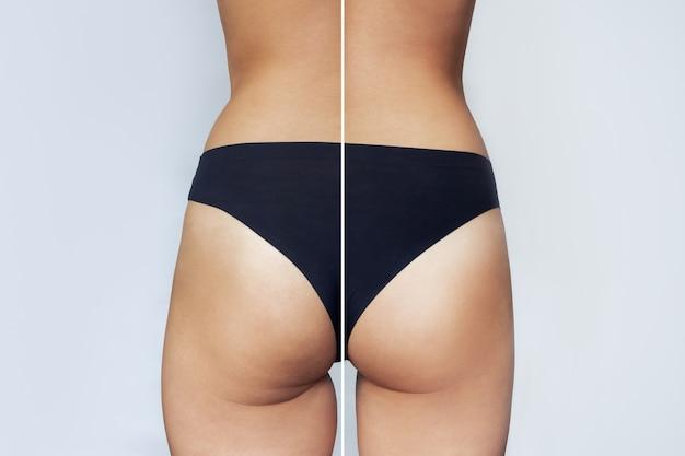 Eine nahaufnahme des weiblichen gesäßes vor und nach der fettabsaugung oder anticellulite-behandlung diätsport