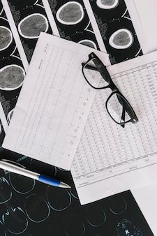 Eine übersichtsansicht des mri-scans mit berichten; stift und schwarze brille