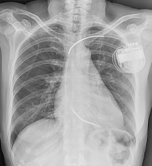 Einkammer-schrittmacher bei einem säugling mit einer operation wegen angeborener herzkrankheit.