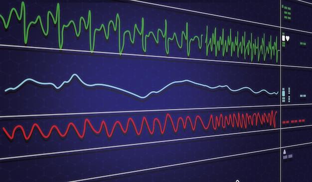 Ekg-monitor in der intraaortalen ballonpumpenmaschine in der intensivstation auf unscharfem hintergrund, gehirnwellen im elektroenzephalogramm, herzfrequenzwelle