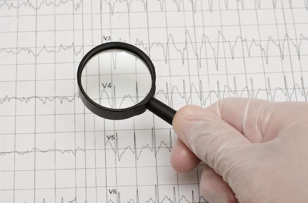 Elektrokardiogramm auf papier. hand im medizinischen handschuh, der ein magn anhält