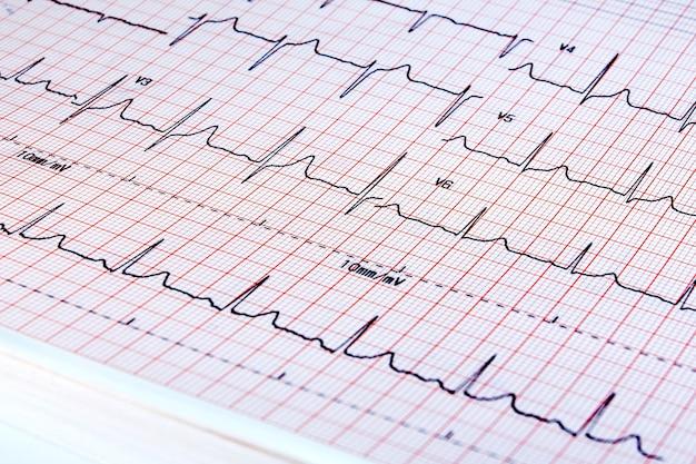 Elektrokardiogramm auf weißem hintergrund