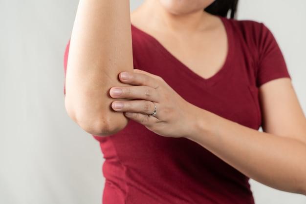 Ellenbogenschmerzen, junge frauen verletzt, gesundheitswesen und medizinisches konzept