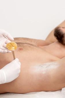 Enthaarung und epilation männliche achselhöhle mit flüssiger zuckerpaste durch spatel. hand der kosmetikerin, die wachspaste auf achsel aufbringt. reibungsloses achselkonzept