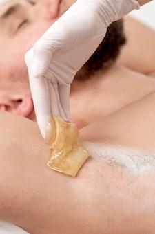 Enthaarung und epilation männliche achselhöhle mit flüssiger zuckerpaste. hand der kosmetikerin, die wachspaste auf achsel des mannes anwendet. reibungsloses achselkonzept