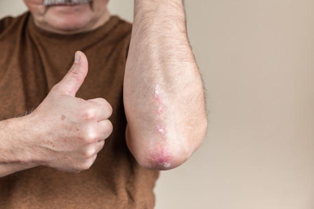 Erfolgreiche psoriasis-behandlung. erfolgreiche psoriasis-behandlung. ein mann zeigt seinen daumen für psoriasis neben dem ellbogen. es stellte sich heraus, eine hautkrankheit zu heilen
