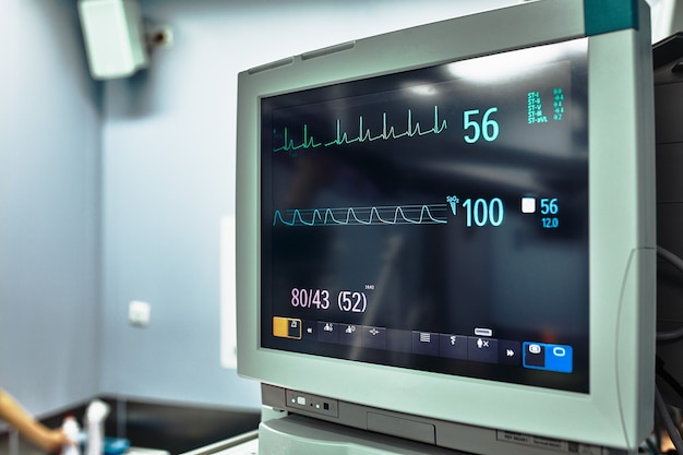 Ergebnisse klinischer studien auf einem bildschirm. medizinische ausrüstung. überwachen sie wichtige indikatoren. herzfrequenz, mechanische beatmung. moderne medizin.