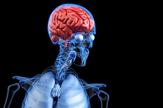 Erkranktes menschliches gehirn. anatomie konkurrieren 3d abbildung