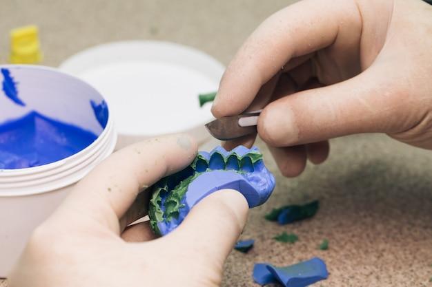Erstellen einer vorlage für temporäre furniere mit a-silikon. zahnarztarbeit in einer modernen zahnklinik. zahntechniker, der prothesen in einem dentallabor herstellt