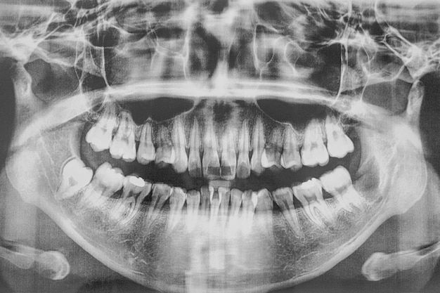 Film, mundhöhle und zähne
