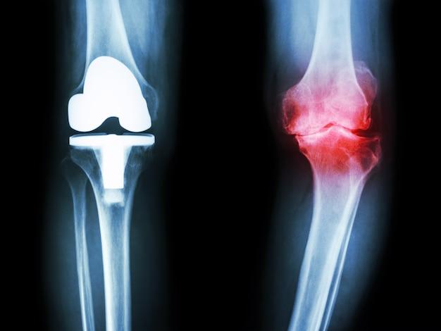 Film röntgen knie von osteoarthritis kniepatienten und künstliches gelenk