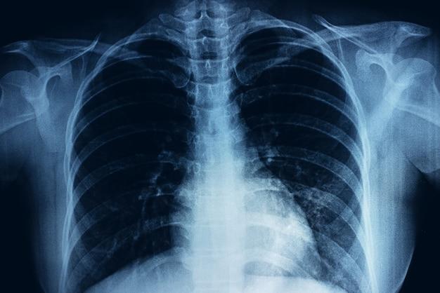 Filmröntgen der brust einer person