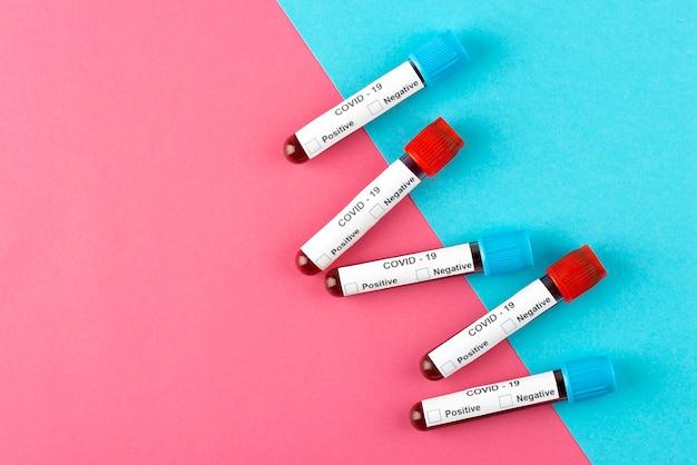 Flat-lay-coronavirus-pcr-testanordnung