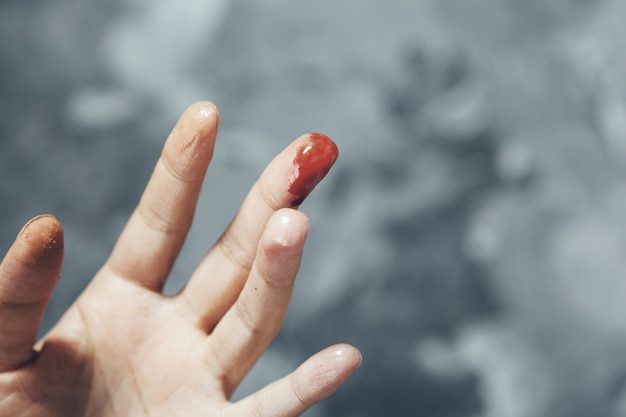 Frau blutiger finger