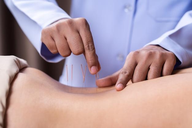 Frau, die an zurück akupunkturbehandlung durchmacht