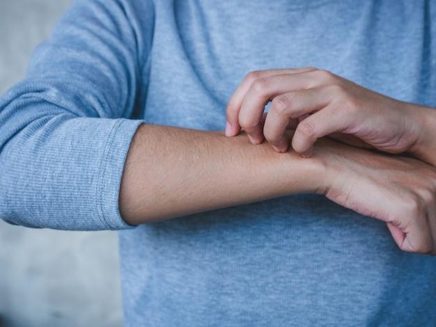 Frau, die den juckreiz auf ihrem arm-, skincare- und medizinkonzept verkratzt