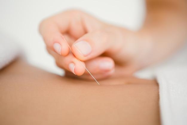 Frau, die eine nadel in einer akupunkturtherapie hält