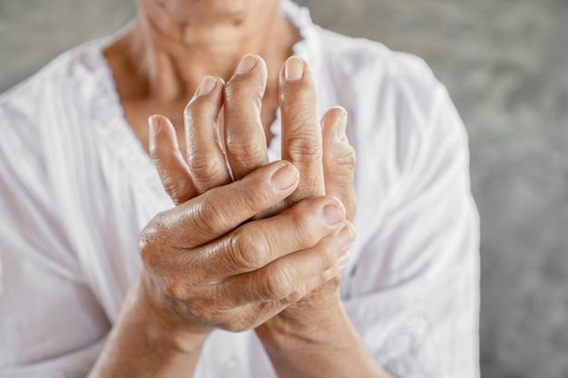 Frau, die hand- und fingerproblem der gicht zeigt