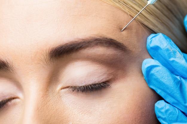 Frau, die injektion auf ihrer stirn erhält