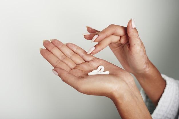 Frau, die körperpflegecreme von flasche auf ihrer hand mit vitiligo gießt