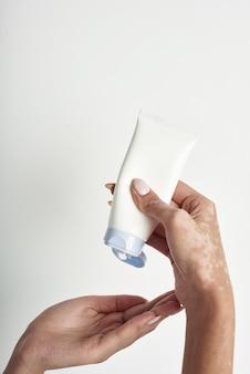 Frau, die körperpflegecreme von flasche in ihre hand mit vitiligo gießt