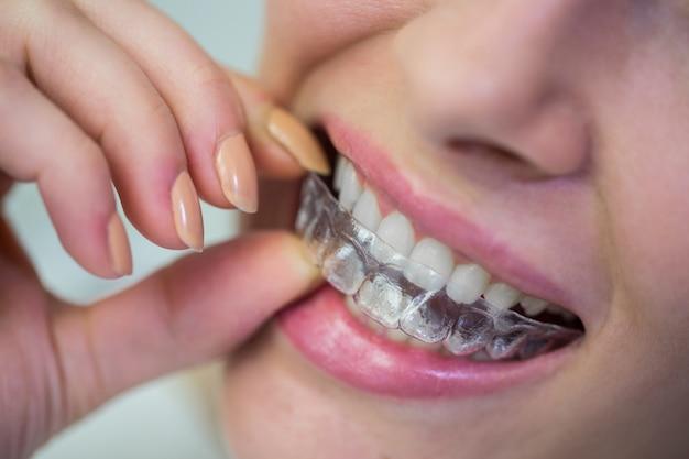 Frau, die unsichtbare zahnspangen des kieferorthopädischen silikons trägt