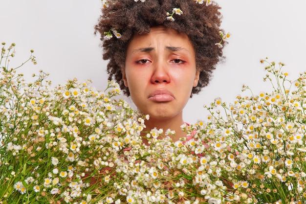 Frau, die von kamillenblüten umgeben ist, hat ein rotes, geschwollenes auge, eine schnupfennase, die an einer saisonalen pollenallergie leidet, muss einen immunologen konsultieren
