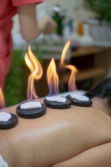 Frau, die zen-basaltsteine in brand setzt