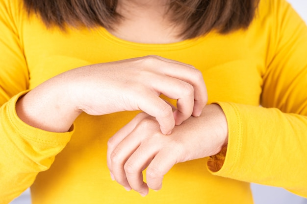 Frau kratzt ihre juckende hand.