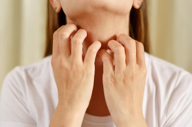 Frau leidet an juckender, gereizter haut aufgrund von covid-19