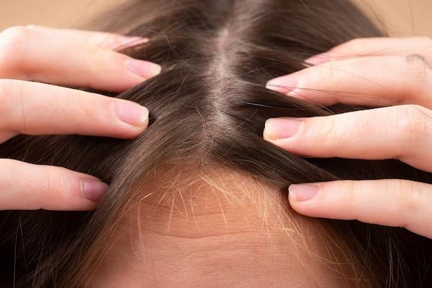 Frau mit haarausfallproblem. porträt des jungen mädchens mit einer glatze. kopfschuss eines nervösen mädchens mit einer haarbürste.