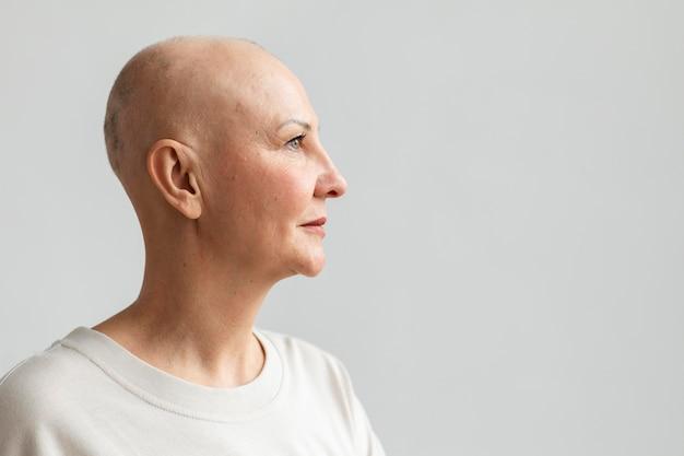Frau mit hautkrebs mit kopienraum