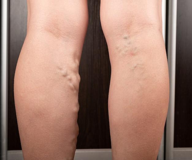 Frau mit krampfadern thrombose gedehnter venen
