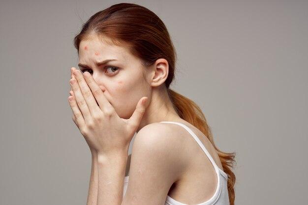 Frau mit pickel auf ihrem gesicht berührt gesicht mit händen gesundheitsprobleme akne