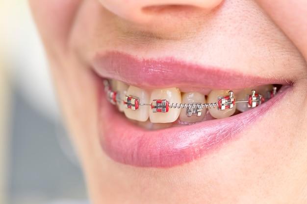 Frau zeigt ihre zähne mit zahnspangen. zahnarzt- und kieferorthopädiekonzept