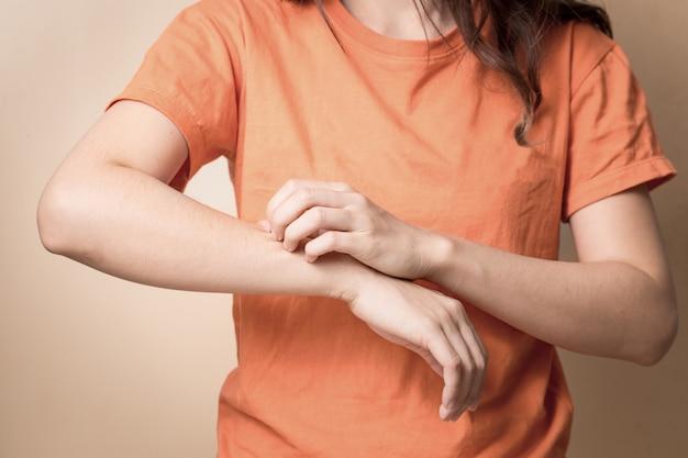 Frauen kratzen juckenden arm mit der hand.