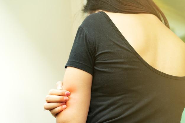 Frauen übergeben kratzer das jucken auf arm-, gesundheitswesen- und medizinkonzept.