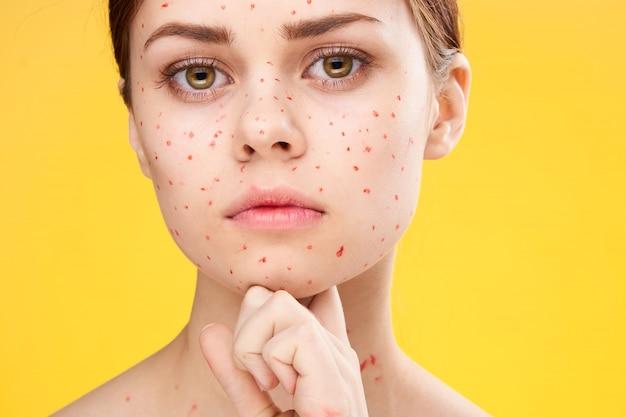 Frauenausschlag und entzündung des gesichts, akne und windpocken