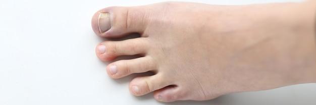 Frauenbein mit verletztem zeh auf weißem hintergrund