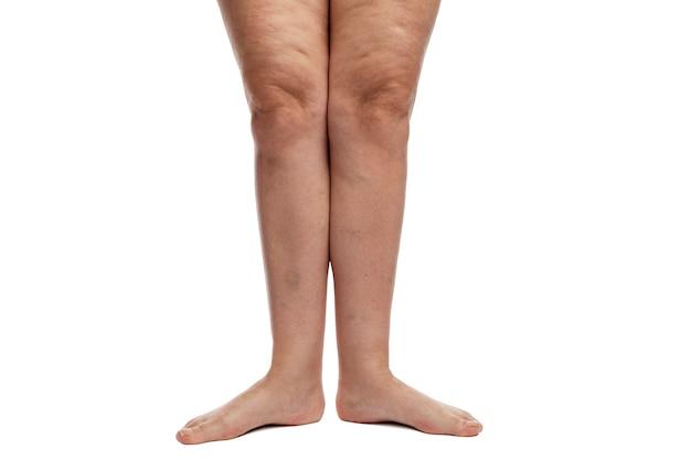 Frauenbeine mit cellulite, venen und übergewicht.