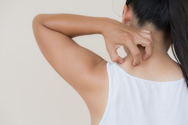 Frauenhand kratzen den juckreiz eigenhändig am hals und an der rückseite. gesundheitswesen und medizinisches konzept.