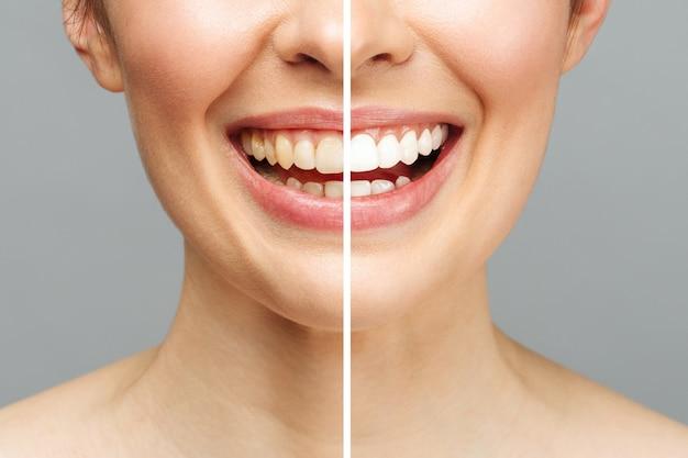 Frauenzähne vor und nach dem aufhellen. auf weißem hintergrund. patientin der zahnklinik. bild symbolisiert mundpflege zahnheilkunde, stomatologie.