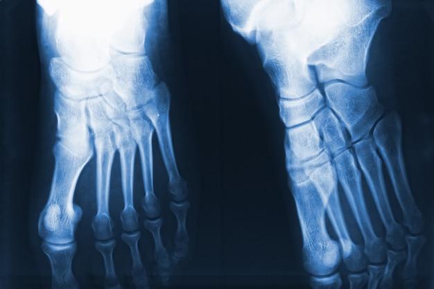 Füße röntgen